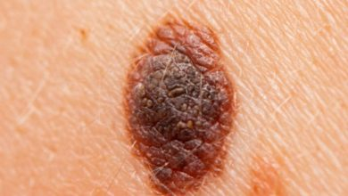 Safe home remedies to remove Moles