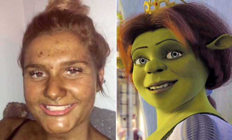 Woman looks like Fiona from 'Shrek' after fake tan goes horribly wrong