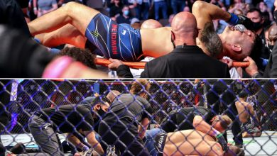Chris Weidman shows just how gruesome leg injury at UFC 261 was