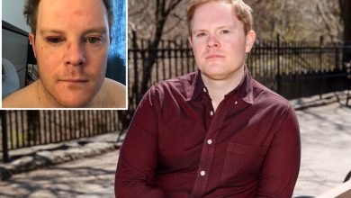 Actor nearly blinded in subway attack returns to TV with a vision